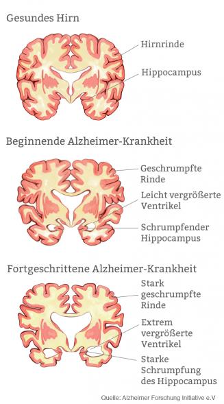 Alzheimer: Ursache von Alzheimer-Demenz im Gehirn