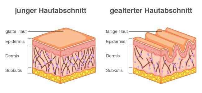 Hautschichten Trockene und juckende Haut Infografik