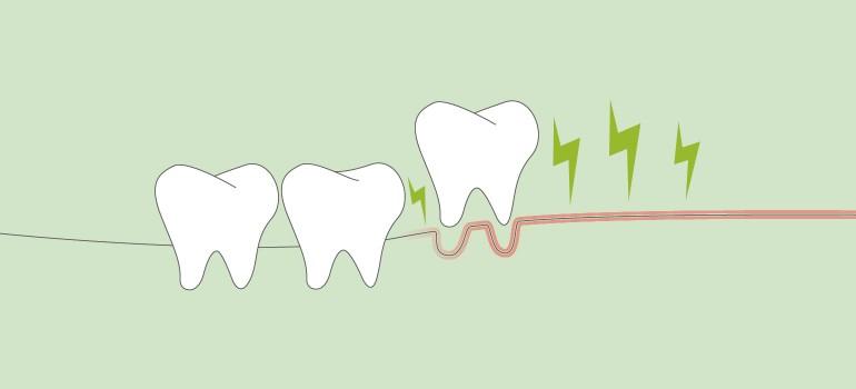 Parodontitis Teaser small