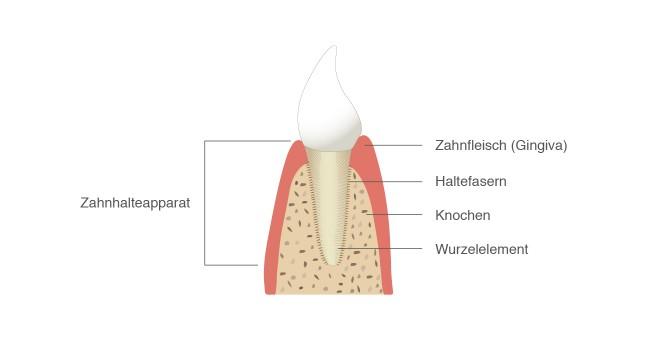 Parodontitis: Entzündung des Zahnhalteapparates