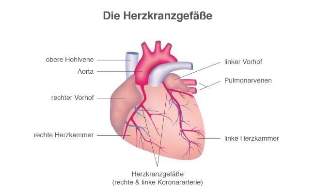 Herzinfarkt: Verstopfte Herzkranzgefäße