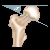 Oberschenkelhalsbruch Pauwels-Klassifikation Pauwels 1-Fraktur