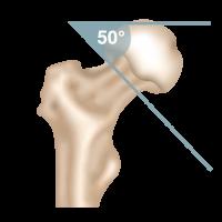 Oberschenkelhalsbruch Pauwels-Klassifikation Pauwels 2-Fraktur