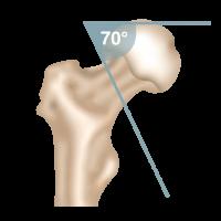 Oberschenkelhalsbruch Pauwels-Klassifikation Pauwels 3-Fraktur