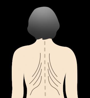 Osteoporose Tannenbaumphänomen