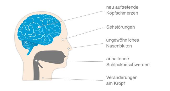 Krebssymptome Hals & Kopf