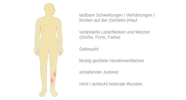 Krebssymptome der Haut