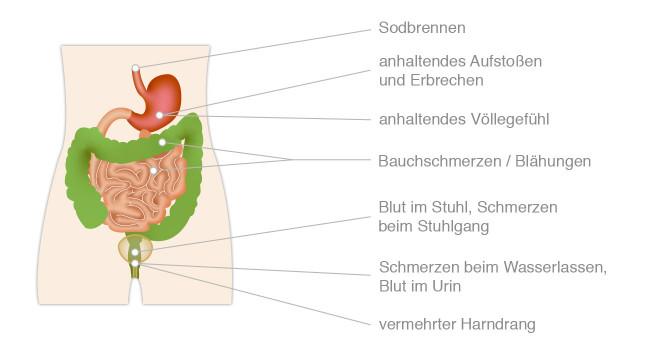 Krebsanzeichen Magen-Darm & Harnwege