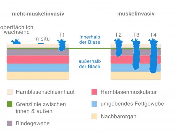 Arten von Blasenkrebs