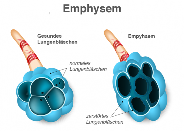 COPD Emphysem