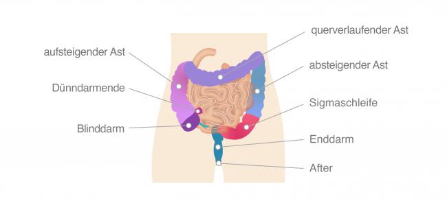 Darmkrebs Dickdarm Anatomie