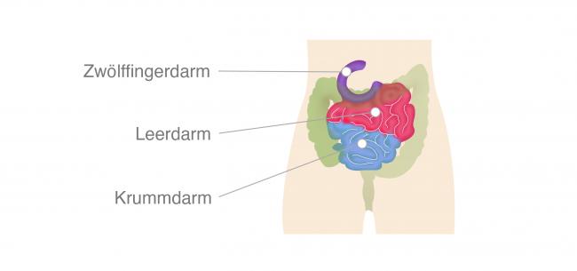 Darmkrebs Dünndarm Anatomie