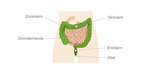 Darmkrebsvorsorge Infografik