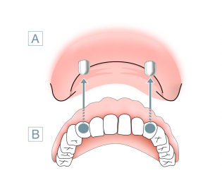 Coverdenture-Prothese / Deckprothese