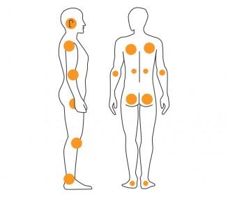 Dekubitus: Druckstellen am Körper