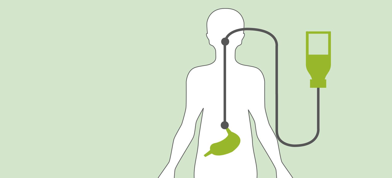 Enterale Ernährung durch Magensonde