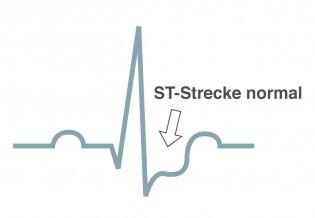 Herzinfarkt NSTEMI