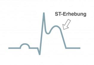Herzinfarkt STEMI