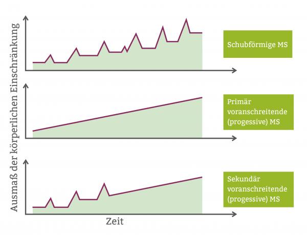 MS Grafik Verlauf