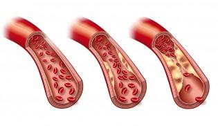 Schlaganfall Arteriosklerose
