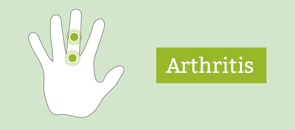 Mysteriöse Heilung - Warum sich Arthritis-Patienten besser fühlen, bevor ihr Medikament wirkt