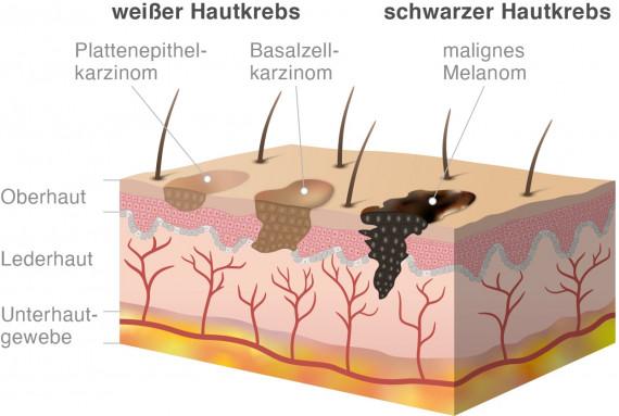 Infografik: Weißer Hautkrebs und schwarzer Hautkrebs im Vergleich